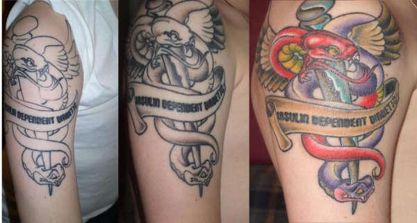 Medical Alert Tattoo