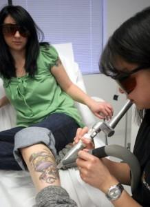 Tattoo Removal - Jen Podany
